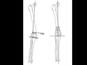 distal femoral osteotomy